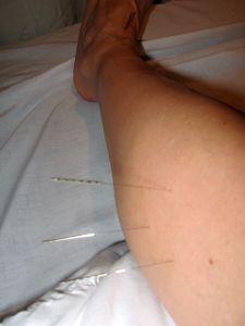 tibialis anterior acupuncture